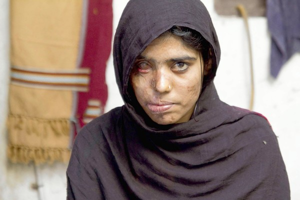 Bringing Awareness to Acid Attacks in the Middle East
